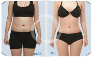 xoa bụng có làm giảm mỡ bụng không