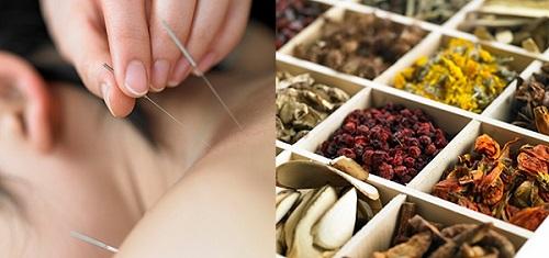 Y học cổ truyền Trung Quốc trị liệu bấm huyệt châm cứu