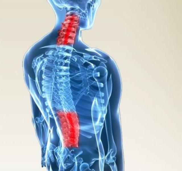 Hiện tượng vôi hóa cột sống và những điều bạn cần biết